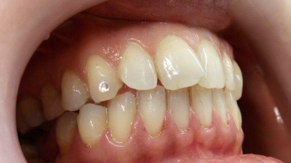 Καθαρισμός δοντιών. Γιατί είναι τόσο σημαντικός; Όλα όσα πρέπει να γνωρίζετε.