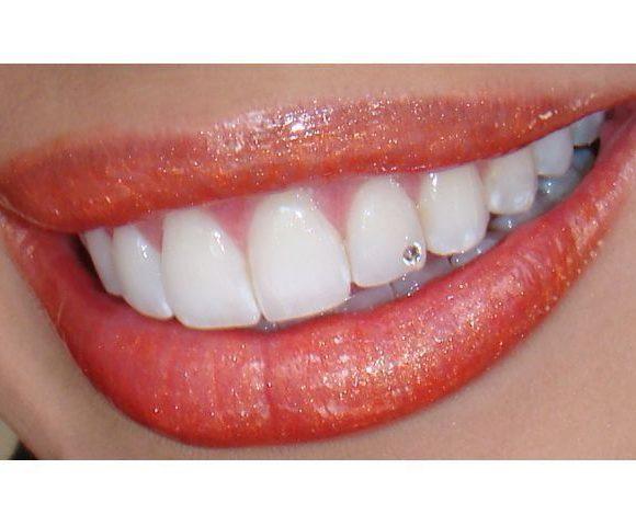 Οδοντικό Στρας (Strass), τι είναι; πως γίνεται;