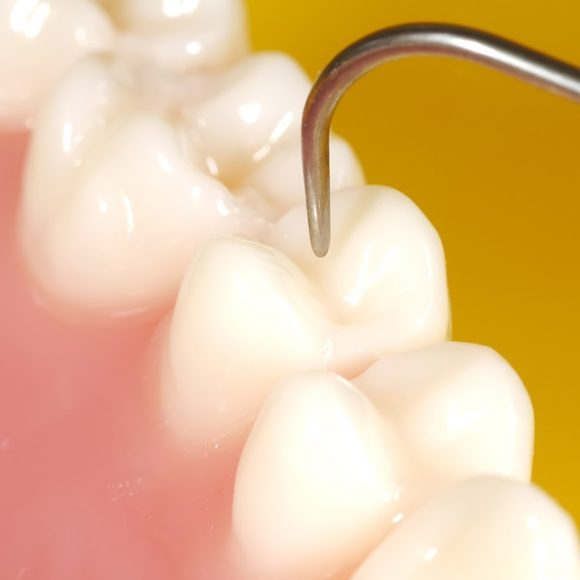 Dental fillings (white for high esthetics)