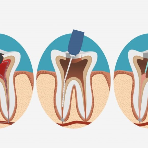 Endodontic Treatment (Rootcanal treatment)