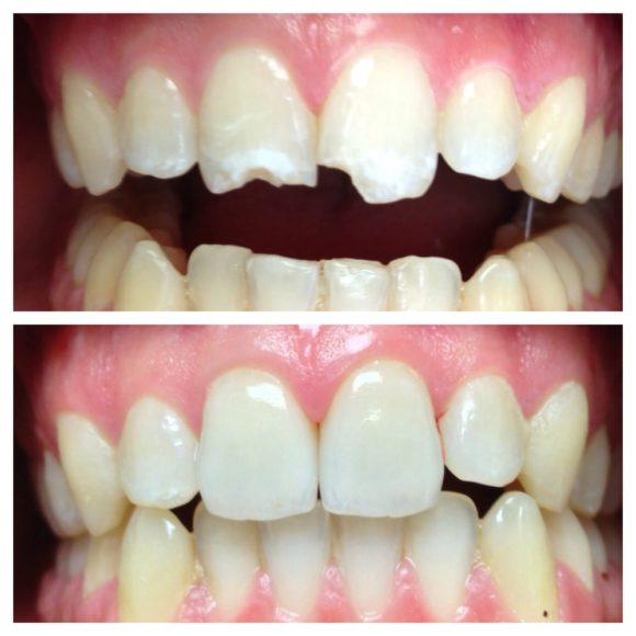 Τεχνική Dental Bonding. Τι είναι; Πως γίνεται;