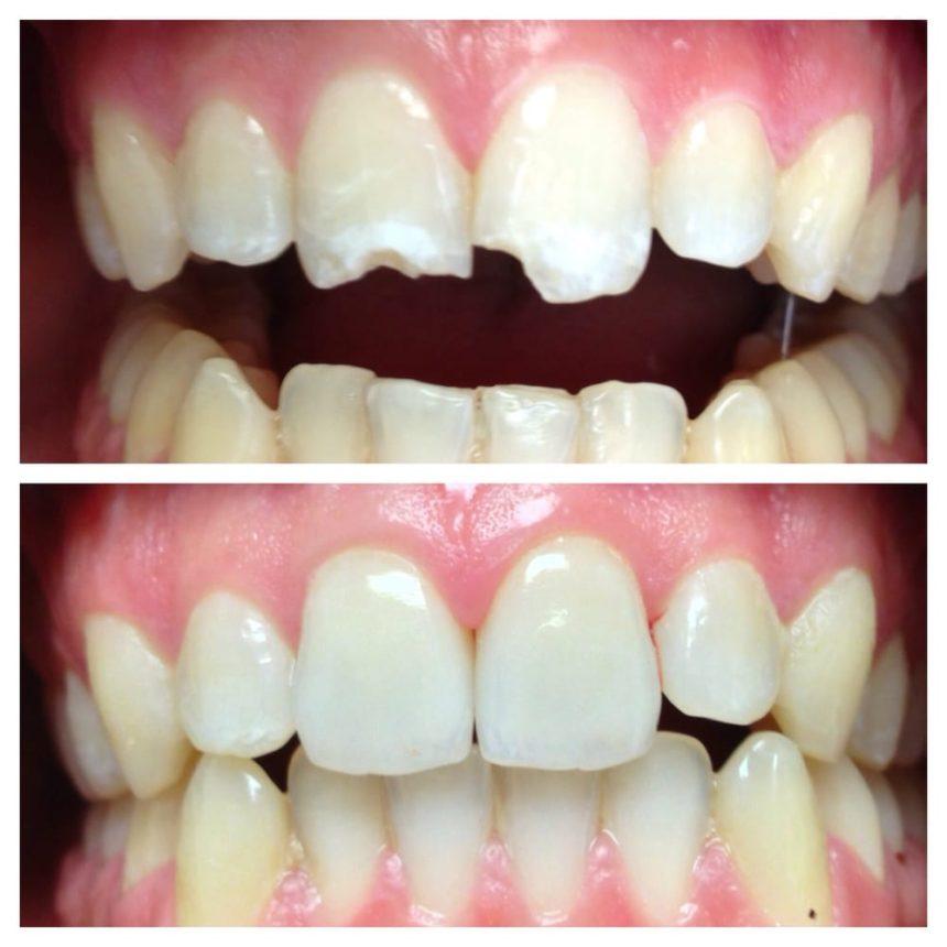 Τεχνική Dental Bonding