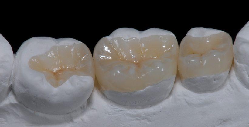 Ένθετα και επένθετα δοντιών.