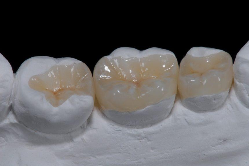 'Ενθετα / Επένθετα δοντιών