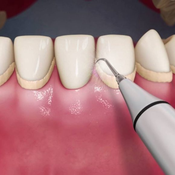 Dental Scaling (cleaning and polishing)