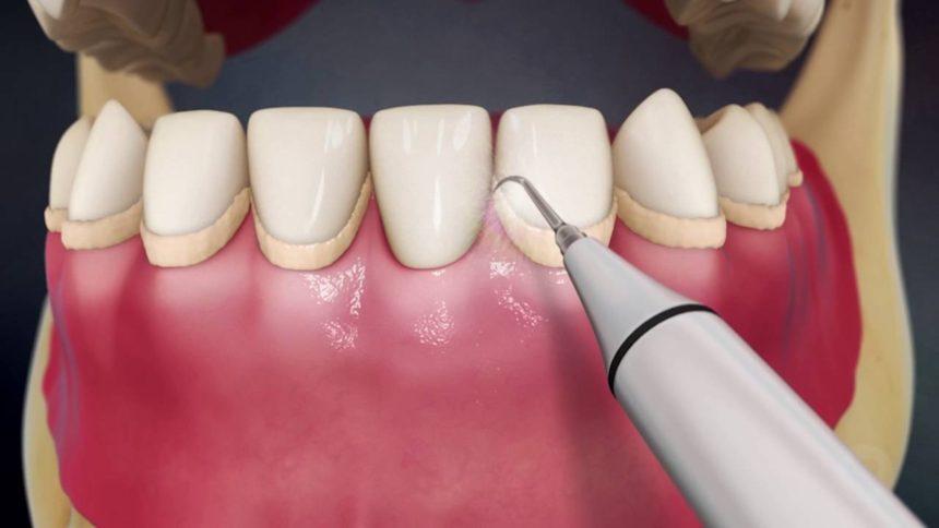 Καθαρισμός (Αποτρύγωση και στίλβωση δοντιών)