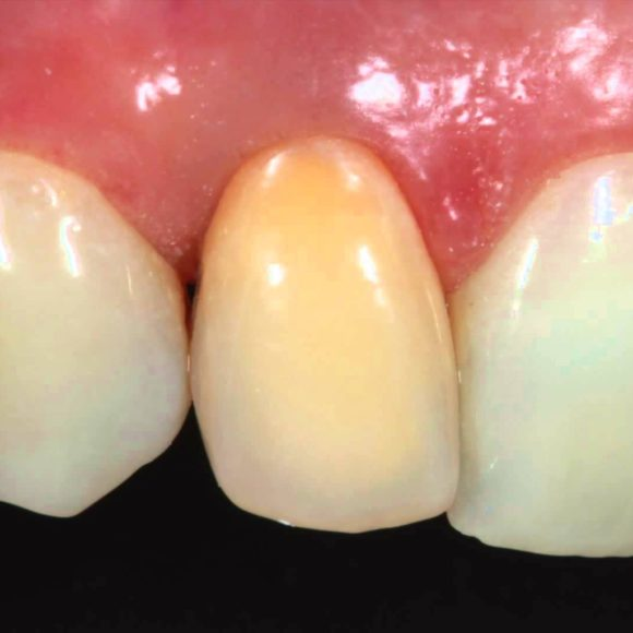 Internal bleeching of discolored endotreated tooth