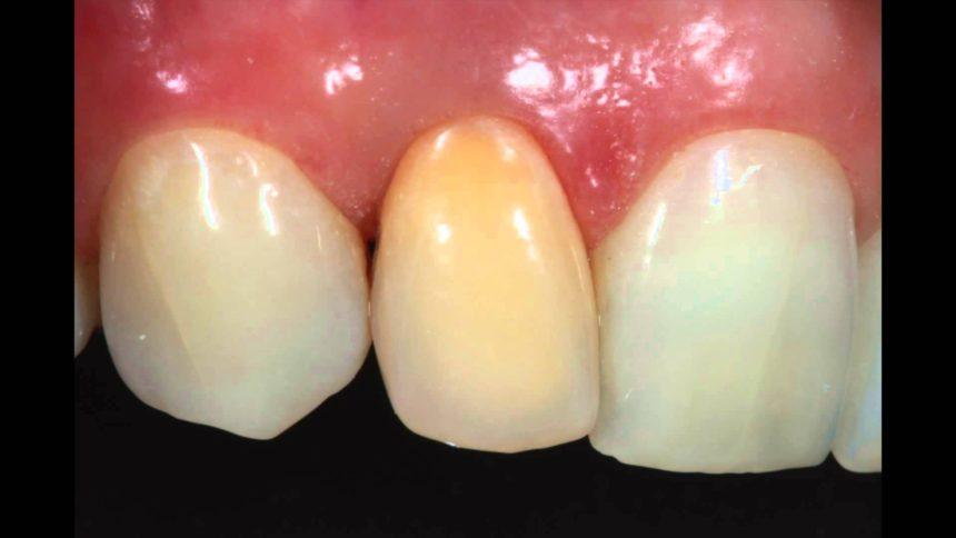 Bleking av en enkelt, rotfylt tann.