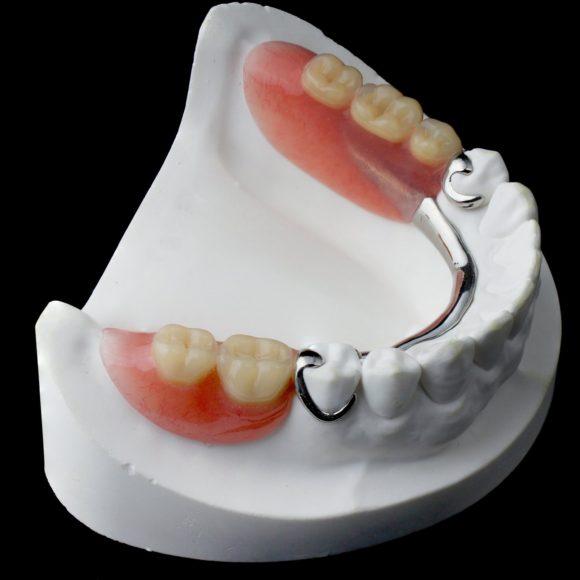 Μερικές Οδοντοστοιχίες