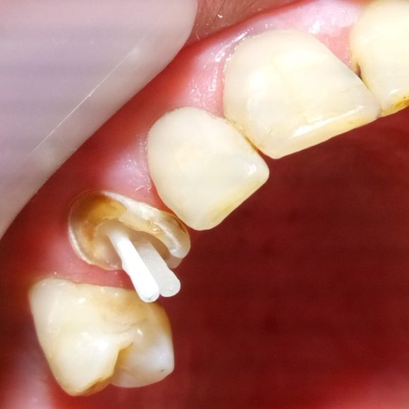 Ανασύσταση δοντιού με άξονα